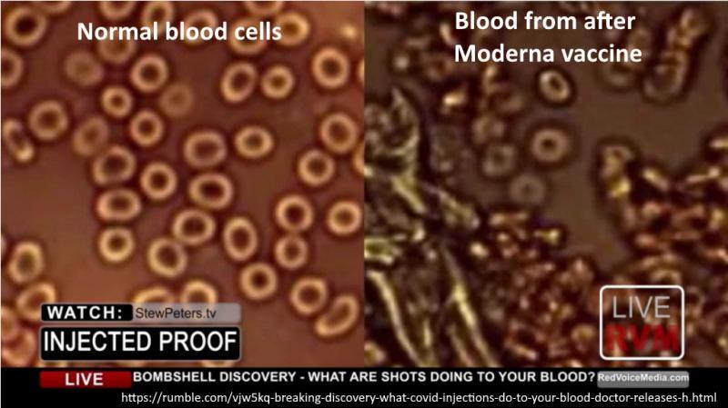 blood smear post jab